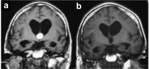 Pre- and postoperative MRIs following transcortical-transventricular resection of a colloid cyst.