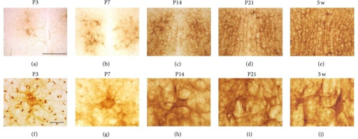 WFA-stained ECM in the Gi of the pons. (a–j) Low- (a–e) and high- (f–j) power images of WFA labeling in the Gi at P3 (a, f), P7 (b, g), P14 (c, h), P21 (d, i), and 5 w (e, j). PNN-like staining was observed at P3 and P7, which became clearer and more complicated from P14 onward. Gi: gigantocellular nucleus. Scale bars = 500 (a–e) and 50 (f–j) μm.