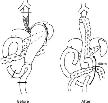 Schema of the operation. The first surgical procedure involved PpPD and Child reconstruction with Braun anastomosis. We performed middle-lower esophagectomy and total gastectomy through a right thoracoabdominal incision. The transverse colon with the vascular pedicle of the left colic vessel was pulled up to the cut end of the esophagus through a hiatus. The anal cut end of the transverse colon was anastomosed to the jejunum in a Roux-Y fashion. Jejunojejunostomy was performed 40 cm from the anal side of the colonojejunostomy
