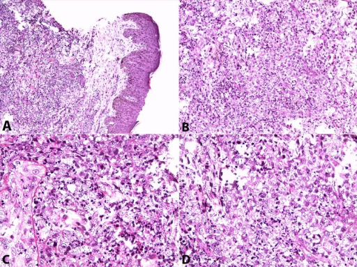 Photomicrography of the skin biopsy. A - Normal epidermis and infiltrated dermis (H&E, 100X); B, C, and D - Small, oval, narrow based yeasts consistent with Histopolasma capsulatum (H&E, 400X).