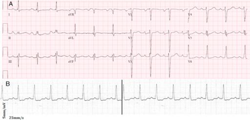 A: Twelve-lead electrocardiogram during sinus rhythm  S | Open-i