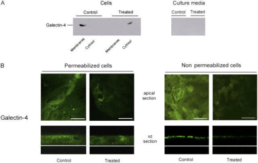 GalNAcα-O-bn decreases the apical localization of galectin-4. (A) Western blot of culture media, cytosol and membrane fractions of control and GalNAcα-O-bn–treated (14 d) cells after permeabilization with saponin, using anti–galectin-4 antibody. (B) Confocal microscopy with an anti–galectin-4 antibody on permeabilized or unpermeabilized control and GalNAcα-O-bn–treated (14 d) cells. Apical and xz sections are shown. Bars, 22 μm.