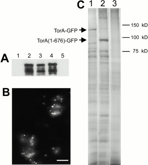 TorA is Triton X-100/sodium carbonate insoluble. (A) Anti-GFP immunoblots of TorA–GFP-expressing cells (lanes 1–4) and Ax3 (lane 5). Cells were lysed through 5 μM nucleopore filters (Corning) and separated in low speed supernatants (lane 1), and pellets (lanes 2 and 5). Insoluble fraction after extraction of whole cells with 0.5% Triton X-100 according to Spudich 1987 (lane 3). Insoluble fraction after extraction of pellets with a mixture of 0.5% Triton X-100, 0.2 M sodium carbonate (lane 4). (B) GFP fluorescence of insoluble fractions after extraction of whole cells with 0.5% Triton X-100. (C) Silver-stained gel of insoluble 0.5% Triton X-100/sodium carbonate–insoluble fractions. Lane 1, TorA–GFP; lane 2, TorA (1–676)–GFP; lane 3, Ax3. Bar, 10 μm.