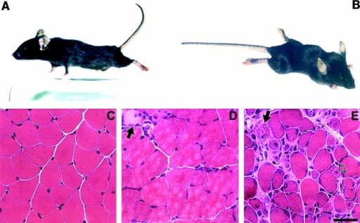 Motor defect and skeletal muscle morphology of control and (SMNF7/Δ7, HSA-Cre) mice. (A) Control littermate. (B) Note the marked paralysis with abnormal posture of the limbs and cyphosis of 4-wk-old (SMNF7/Δ7, HSA-Cre) mice. (C–E) Hematoxylin and eosin staining of transverse sections of gastrocnemius from control littermate (C), 3- (D), and 4- (E) wk-old (SMNF7/Δ7, HSA-Cre) mice. Before the onset of muscle paralysis (D), muscle histology is similar to control skeletal muscle except the presence of rare necrotic muscle fibers surrounded by mononuclear cells (indicated by arrow). After the onset of muscle paralysis (E), skeletal muscle histology revealed necrotic fibers (filled arrow), regenerating myocytes with central nucleus (open arrow), variation in fiber size and infiltration of connective tissue. Bar, 35 μm.