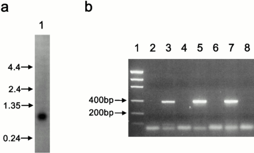 Expression and sequence analysis of a novel histone H2A variant, H2A-Bbd. (a) Human adult tissue Northern showing hybridization signal in testis using a probe derived from the coding sequence of the novel histone H2A variant. (b) PCR products of reverse transcribed poly(A)+ RNA. (1) marker; (2) water control; (3) female primary fibroblast cDNA; (4) female primary fibroblast, no reverse transcriptase control; (5) 293 cDNA; (6) 293, no reverse transcriptase control; (7) female lymphoblast cDNA; (8) female lymphoblast, no reverse transcriptase control. (c) Sequence of the novel histone H2A variant (782067), the H2A region of macroH2A (AAC39908), and three members of the human H2A family: H2A.1, a replication-linked H2A (CAB06031), the histone variant H2A.X (P16104), and the histone variant H2A.Z (P17317). The location of residues modified by acetylation (Ac) and ubiquitination (Ub) are indicated. The three α-helices (I, II, and III) of the histone fold domain are indicated. Alignments were made using GeneWorks® release 2.2.1 (IntelliGenetics).
