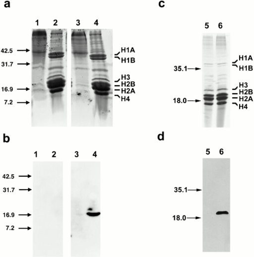 Association of H2A-Bbd with acid-extracted histone proteins in chromatin fractions and copurification with nucleosomes by sucrose gradient ultracentrifugation. (a) Coomassie stain of an 18% polyacrylamide gel of chromatin fractions. (1) Proteins from the chromatin pellet fraction from 293 cells. (2) Proteins extracted from the 293 chromatin pellet under acidic conditions. (3) Proteins from the chromatin pellet fraction from a stable H2A-Bbd–transfected 293 cell line. (4) Proteins extracted from the stable H2A-Bbd–transfected 293 chromatin pellet under acidic conditions. Sizes are given in kilodaltons. The location of histone H1 and the core histones (H2A, H2B, H3, and H4) are indicated. (b) Immunoblot analysis of chromatin fractions from 293 and a stable H2A-Bbd–transfected 293 cell line. A clear 17-kD signal can be seen for the epitope-tagged H2A-Bbd in the acid-extracted fraction of the H2A-Bbd–stable transfected 293 cell line only (4). (c) Coomassie stain of an 18% polyacrylamide gel of nucleosome containing sucrose gradient fractions. (5) Nucleosomes from a nontransfected 293 cell line. (6) Nucleosomes from a stable H2A-Bbd–transfected 293 cell line. (d) Immunoblot analysis of chromatin fractions from 293 and a stable H2A-Bbd–transfected 293 cell line. A clear 17-kD signal can be seen for the epitope tagged H2A-Bbd in the nucleosomal fraction of the H2A-Bbd stable transfected 293 cell line only (6).