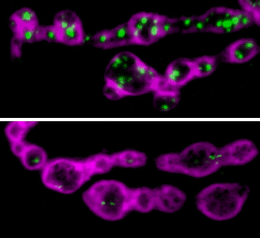 Mitochondria (green) in axon terminals (top) make energy for reserve pool mobilization, which is blocked in drp1 mutants (bottom).BELLEN/ELSEVIER