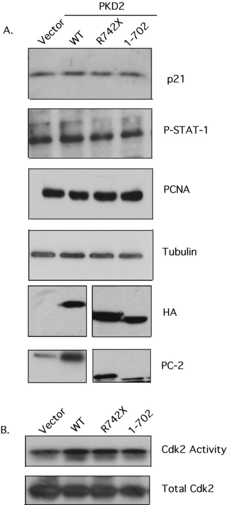 Expression of wild-type or mutant PC-2 does not affect proliferation or STAT-1/p21/Cdk2 activity in NRK-52E cells. (A). Whole cell lysates containing equal amounts of protein from NRK-52E cells trasnsiently transfected with vector-only, HA-WT PKD2, HA-R742X PKD2 and HA-1–702 PKD2 were analyzed by Western blotting for expression of p21, phosphorylated STAT-1, PCNA, tubulin, HA and PC-2. A non-specific band is detected in vector-only and WT PKD2 lanes in the HA blot and co-migrates with mutated PC-2 in this cell line. (B) Cdk2 immunoprecipitates from each transfectant were subjected into an in vitro Cdk2 kinase assay using Histone 1A as substrate. Equal amount of Cdk2 was confirmed by immunoblotting the precipitates with anti-Cdk2 antibody. Data are representative of three independent experiments performed. No statistically significant difference was detected.