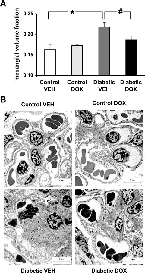Mesangial expansion in podocyte sFlt-1 overexpressing control nondiabetic and diabetic mice after 10 weeks of treatment with VEH or DOX. A: Quantitative electron microscopy of VvMes in control and diabetic mice treated with VEH or DOX (n = 6–8/group). VvMes was increased in VEH-treated diabetic mice (*P = 0.003 for c-VEH vs. d-VEH). Treatment with DOX significantly reduced VvMes in diabetic mice (#P = 0.04 for d-VEH vs. d-DOX) but had no effect in nondiabetic control animals. B: Representative images on transmission electron microscopy show amelioration of glomerular mesangial expansion in DOX-treated diabetic mice compared with VEH-treated diabetic animals. Scale bars represent 5 μm.