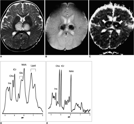 A 10-month-old boy with sequelae of severe motor deficit.A. Axial fast spin-echo T2-weighted MR image (TR/TE=3500/120) shows symmetric high signal intensity in the bilateral thalami.B. Axial T2*-weighted gradient-echo MR image (TR/TE=800/30, flip angle = 20°) at the same level as A shows conspicuous low signal intensity within the thalamic lesions, possibly due to the presence there of acute petechial hemorrhage.C. Apparent diffusion coefficient (ADC) map of diffusion imaging reveals low ADC in the thalamic lesions (arrows), which may represent the presence of cytotoxic edema. In the central portion of the lesions, however, ADC is high, suggesting tissue necrosis.D. Short echo-time proton MR spectrogram (STEAM 3000/30) of a thalamic lesion shows increased glutamate/glutamine complex peak intensities at 2.0-2.5 ppm and lipid/lactate complex peak intensities at 0.8-1.5 ppm, as compared with an age-matched control subject (E). Broadening of the line-width may be caused by the occurrence of petechial hemorrhage within the lesion.E. Short echo-time proton MR spectrogram (STEAM 3000/30) of normal thalamus in a 9-month-old age-matched control subject.Note.-Ins=myoinositol, Cho=choline compound, tCr=creatine complex, Glx=glutamate/glutamine complex, NAA=N-acetyl aspartate