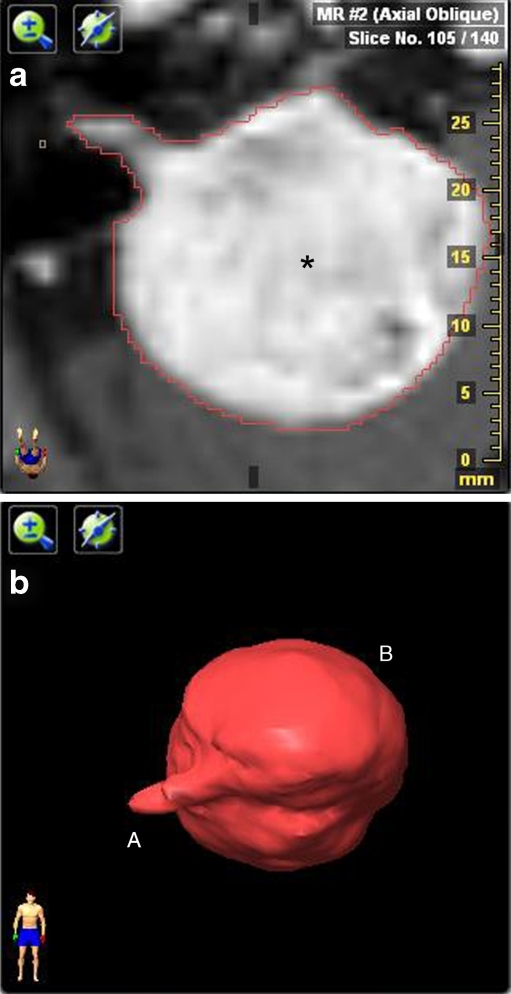 a: Example of area tracing with volume software. Axial contrast-enhanced T1-weighted image shows a right-sided vestibular schwannoma (asterisk) with a large cerebellopontine angle component. The red line is the result of the autotracer which lines the vestibular schwannoma. b Three dimensional representation of a vestibular schwannoma (VS), integrating the surface of all slice intervals. The small intracanalicular (A) and large extracanalicular (B) portion of the VS can easily be identified