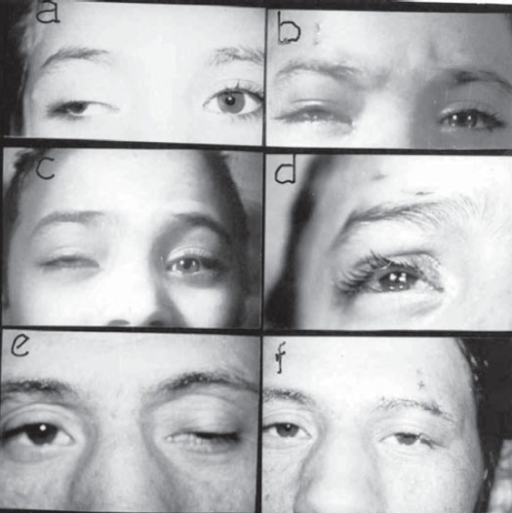 unilateral MMBS procedure.(a and b): 7-yr-old girl with paralytic ptosis due to 3rd nerve palsy before and after squint and MMBS procedure. (c) Cosmetically unacceptable correction 6 months post-op. (d) recent re-operation with new MM strip. (e and f) 20-yr-old male before and after surgery with vicryl sutures in place.