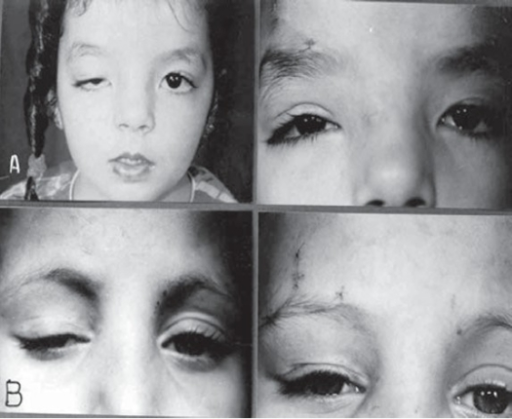 Preoperative and early postoperative appearance after MMBS procedure for unilateral congenital ptosis recurrent after previous ptosis surgery without suspensory material. (A) 5-yr-old girl recurrent for 3rd time. (B) 8-yr-old boy recurrent for 2nd time.