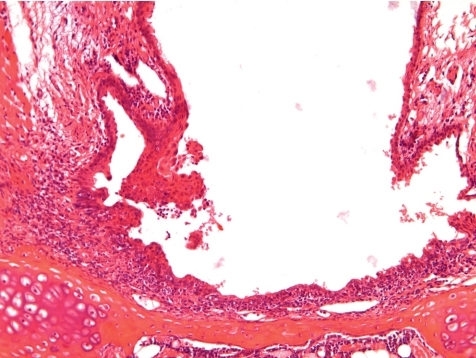 Induced submucosal chronic active inflammation. Squamous metaplasia with focal                    hyperplasia and keratinization at arytenoid projections. Level 3. 5  HE, lens × 20.