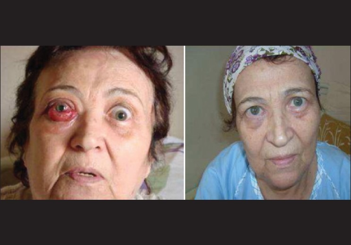 exophthalmos proptosis periorbital swelling conjunctive congestion and chemosis in the right eye
