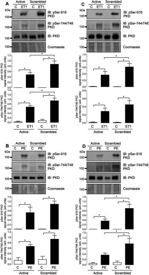 Effect of FHL1 or FHL2 knockdown on ET1- and PE-induced phosphorylation of endogenous PKDNRVMs were transfected with either scrambled siRNA or active siRNA duplexes targeted at FHL1 (A and B) or FHL2 (C and D) transcripts. After 48 h, cells were treated with vehicle (C) or ET1 (10 nM) (A and C) or vehicle (C) or PE (3 μ M) (B and D) for 20 min. Phosphorylation status of endogenous PKD at Ser916 and Ser744/Ser748 was determined by immunoblot (IB) analysis using appropriate phospho-specific antibodies. Protein loading was confirmed using an anti-PKD antibody and by Coomassie Blue staining. Individual immunoblots illustrate representative experiments, and histograms show quantitative data as means±S.E.M. (n=7–8). *P<0.05.