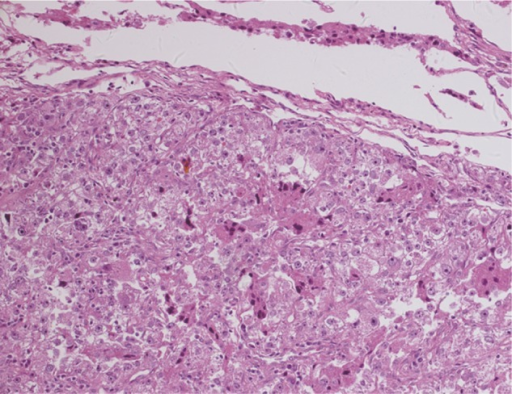 Histopathological findings of metastatic lesion in the lung.Notes: The morpholgic features of lung lesion were consistent with the features of the renal lesion (hematoxylin and eosin; magnification, ×200).