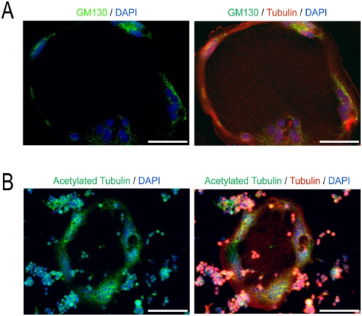 Golgi and stable microtubules are found at the periphery of RANKL+ LPS/IFNγ induced MGCs.(A) Representative images of day 4 MGCs treated with LPS/IFNγ and stained for GM130, a Golgi marker (green), α-tubulin (red), and nuclei (blue). (B) Representative images of day 4 MGCs treated with LPS/IFNγ stained for acetylated α-tubulin (green), α-tubulin (red), and DNA (blue). Images shown are representative of three independent experiments. Scale bars represent 50 microns.