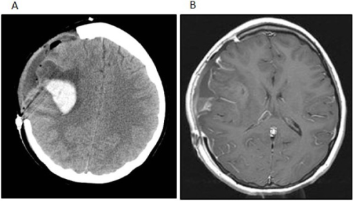 (A) The patient developed a delayed intratumoral hemorrhage requiring hemicraniectomy and evacuation of the hemorrhage and tumor. The noncontrast head CT shows the acute hemorrhage within the right Sylvian fissure extending into the right frontal lobe; (B) The post-contrast t1-weighted image after the second surgery shows subtotal removal of the neoplasm and evacuation of the intratumoral hemorrhage.