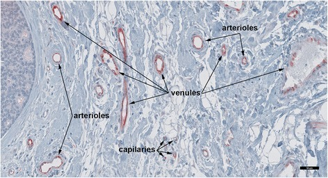 Endothelial FSHR expression at the periphery of invasive breast cancer. This picture illustrates that tumor FSHR+ blood microvessels are arranged in a hierarchical pattern of arterioles - capillaries - venules. Immunohistochemical analysis was performed on paraffin-embedded sections of human breast cancer tissues with the use of FSHR323 antibody, followed by a secondary peroxidase-coupled antibody visualized with the use of the red-brown peroxidase-reaction product of AEC. Scale bar represents 50 μm.
