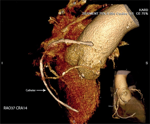 Placement of the catheter on the right heart on three-dimensional computed tomography angiography
