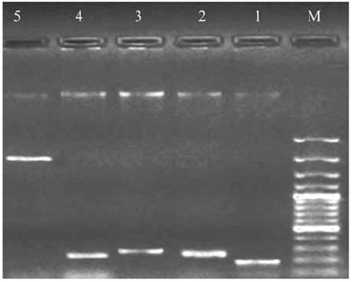 Electrophoresis of PCR product of TA systems genes on the agarose gel 1%.M