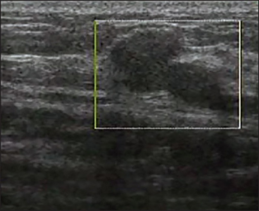 View of a malignant lesion in color Doppler sonography without vascularization