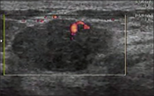 View of a malignant lesion in color Doppler sonography with penetration of vessels