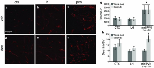 Prenatal exposure to dexamethasone (dex) impacted desmin-immunoreactive pericyte coverage in the mouse paraventricular nucleus of the hypothalamus (PVN) at P20. Example confocal images for each region are provided in panels a–f, and a quantitative summary by graph in g and h. In the PVN, there was a significant increase in desmin-immunoreactive pericyte coverage in dex-treated compared to vehicle-treated mice (c, f; *p < 0.01) when blood vessel density was taken into account (h; *p < 0.01). There were no significant differences observed in desmin-immunoreactive pericyte coverage in the cortex (CTX; a, d) or lateral hypothalamus (LH; b, e) between dex-treated or vehicle-treated mice. There was a significant increase in desmin-immunoreactive pericyte coverage in the PVN regardless of treatment compared to the CTX and LH (g). Number of animals per group is provided in the code for the bars in panels g and h. Significant differences between regions indicated by asterisk and for treatment as hash. Scale bar 50 µm in panel a, which applies to all images