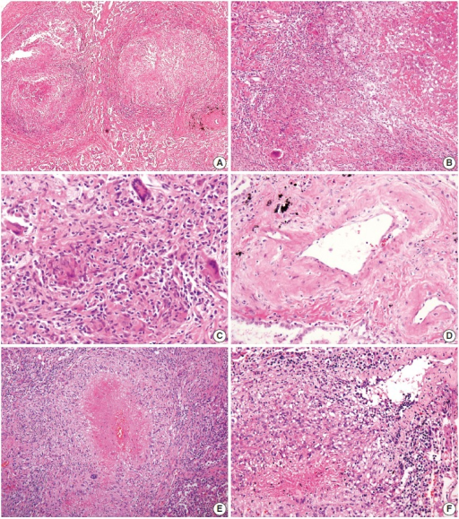 Microscopic findings. (A–C) Multifocal nodular granulomatous inflammation with extensive central necrosis is replacing normal architecture (case 1). (D) Mild transmural vasculitis distant from necrotic area, i.e., cicatricial-type vasculitis, is observed. (E, F) Multiple confluent granulomas with central caseous necrosis and granulomatous vasculitis are found (case 2).