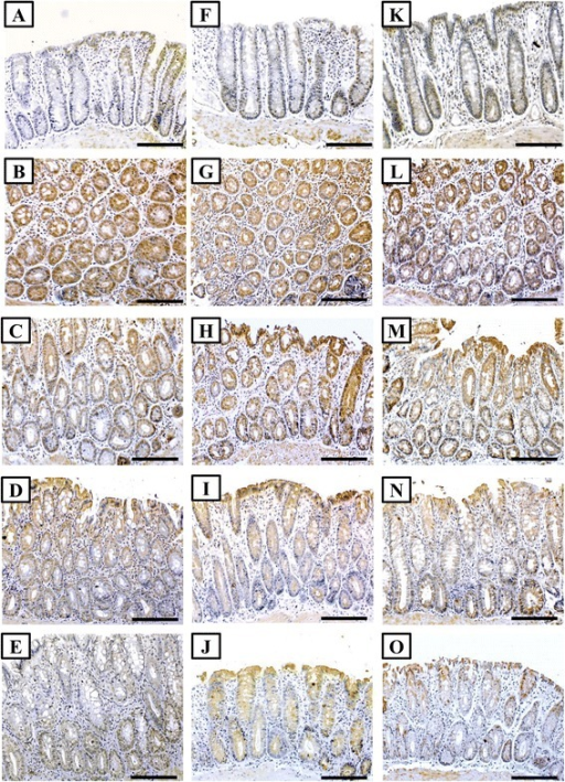 Immunohistochemistry localisation of β-catenin (left column), iNOS (middle column) and HSP-90 (right column) in control (a, f & k), AOM (b, g & l), 5-FU (c, h & m), VitD (d, i & n) and 5-FU/D (e, j & o) groups. (×200 magnification, scale bar = 8 μm)