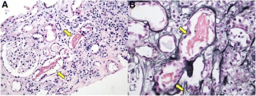 Kidney biopsy light microscopy. a Hematoxylin & eosin (X200) showing dark pink, filamentous tubular casts (yellow arrow); b) Jones' silver stain (X400) showing dark pink, coarsely granular and filamentous tubular casts (yellow arrow)