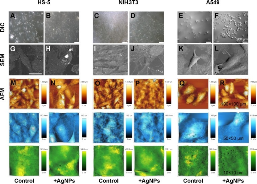 Morphology of cells treated with AgNPs.Notes: Optical DIC (A–F), SEM (G–L), and 3D Bio-AFM (M–R) images of control and NP-treated HS-5, NIH3T3, and A549 cells. (M–R) Cells are scanned in an order of 100×100 µm (dark gold), 50×50 µm (light blue), and 10×10 µm (green fluorescence) scale, respectively.Abbreviations: AgNPs, silver nanoparticles; AFM, atomic force microscopy; DIC, differential interference contrast; NPs, nanoparticles; SEM, scanning electron microscopy.