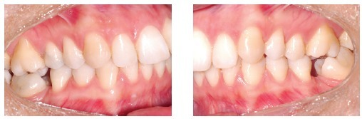 - A typical case of mini-implants use: mesialization of mandibular second and third molars performed to close spaces resulting from early first molars loss.