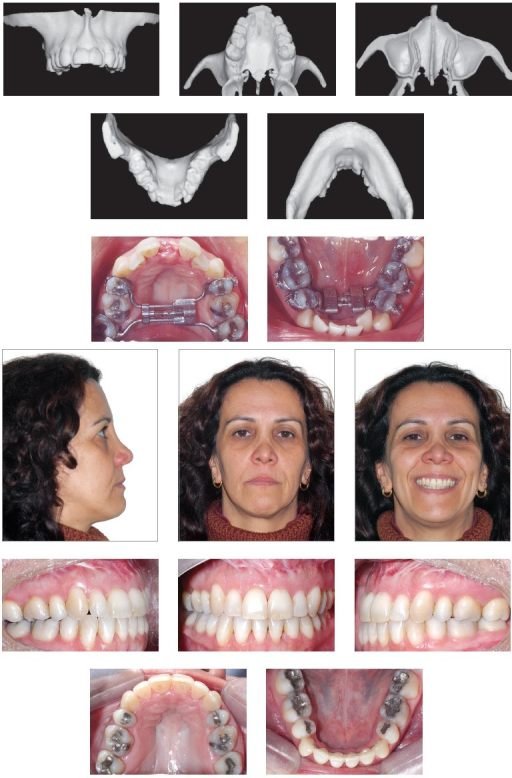 - Patient subject to orthodontic treatment with the aid of tooth-borne distractors in the maxilla and the mandible. Significant improvement in the buccal corridor is evinced.