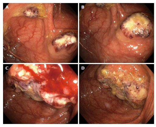 Colonoscopy. A, B: Colonoscopy showing multiple pseudotumors (amebomas) in the ascending colon, mimicking carcinoma; C, D: Endoscopic view of a large ulcerated tumor mass at the ileocecal valve.