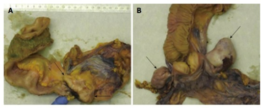 Gross pathology of the surgical specimens. A: Gross image showing a tumor mass (arrows) that involves the appendix, the ileocecal valve and the cecum. Surgical resection was performed after eradication of amebiasis and chemotherapy. B: Gross image of the Douglas-resection showing bilateral ovary metastases (arrows).