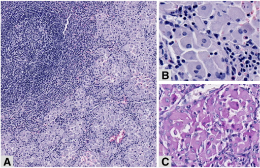 Spleen resection—Patient 1.The spleen's sinusoids are filled with groups of macrophages (A, hematoxylin–eosin, original magnification × 8). At higher magnification (B, hematoxylin-eosin, original magnification × 30 and C, PAS staining, original magnification × 20), the macrophages have a greyish fibrillary cytoplasm, weakly positive for PAS.