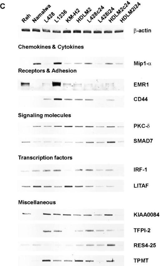 Verification of novel NF-κB target genes. (A) NF-κB binding activity. Whole cell extracts of HRS cells and control cells were analyzed by EMSA for NF-κB DNA binding activity. (B) RNA was extracted 24 h after infection from L428 and HDLM2 cells infected with Ad5 control (L428c24, HDLM2c24) or Ad5-IκBΔN (L428i24, HDLM2i24), as well as from various control (Reh, Namalwa) and HRS cell lines as indicated. Northern blotting was performed for the indicated genes. As a control, the stripped blot was reprobed with a GAPDH cDNA probe. (C) Total RNA was extracted as described in B and RT-PCR reactions were performed for the indicated genes. As internal control, RT-PCRs were performed for β-actin.