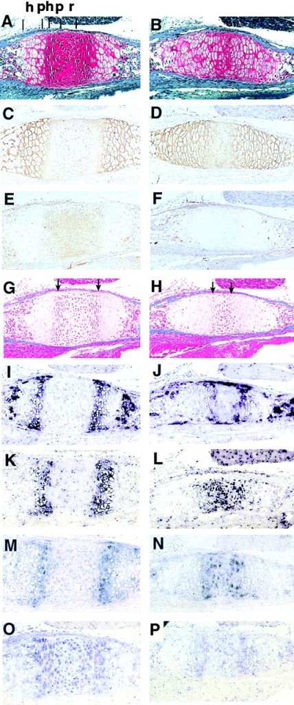 The histological changes in basooccipital–basosphenoid synchondroses in 1.5-d-old wild-type and Ltbp-3– animals. (A and B) Weingart hematoxylin, Safranin O and Fast green staining. (A) Wild-type. (B) Mutant. Wider zone of hypertrophic chondrocytes in the mutant synchondrosis compared to the wild-type indicates more extensive differentiation. Cartilage is stained red. h, hypertrophic chondrocyte zone; r, resting chondrocyte zone; p, proliferating chondrocyte zone; ph, prehypertrophic chondrocyte zone; (C and D) Immunostaining for collagen X. (C) Wild-type. (D) Mutant. (E and F) Immunostaining for collagen II. (E) Wild-type. (F) Mutant. (G and H) Masson's trichrome staining for bone. More advanced bone fronts (blue) are apparent in mutant (H) versus wild-type (G) synchondrosis. Arrows point to fronts of the cortical basooccipital and basosphenoid bones. (I and J). In situ hybridization for bone sialoprotein 1 (Bsp-1). (I) Wild-type. (J) Mutant. (K and L) In situ hybridization for Ihh. (K) Wild-type. (L) Mutant. The strong signal in the middle of the mutant mouse synchondrosis (L) suggests that these chondrocytes are already committed to hypertrophic differentiation. (M and N) In situ hybridization for PTH/PTHrP-R. Expression pattern is less defined in the mutant animal sample (N) compared to the wild-type (M), and the transcript is detected through the central region of the synchondrosis. The intensity of the signal is similar in wild-type and in Ltbp-3– samples. (O and P). In situ hybridization for PTHrP. In wild-type synchondroses (O) expression is apparent in proliferating chondrocytes and in lateral chondrocytes of the central region of the synchondrosis. The signal is absent in the resting chondrocytes in the center of synchondrosis. The intensity of the signal is decreased in Ltbp-3– synchondrosis (P).