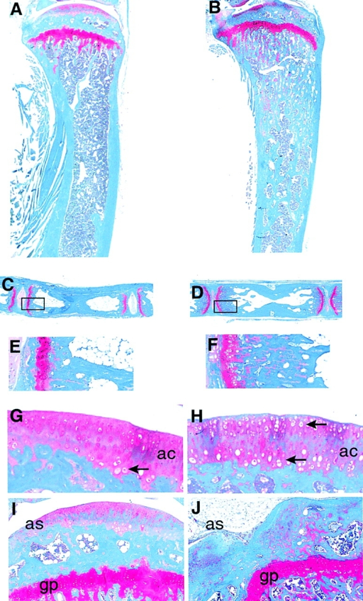 Changes in the structure of long bones in Ltbp 3 mice. (A–F) Mid-sagittal sections of tibiae (A and B) and caudal vertebrae (C–F) of 9-mo-old wild-type (A, C, and E) and mutant (B, D, and F) animals stained with Weingart hematoxylin/Safranin O/Fast green. (E and F) Higher (5×) magnification of the regions boxed in C and D. (G and H) Mid-sagittal sections of the articular region of proximal tibiae in 6-mo-old wild-type (E) and mutant mice (F). (I and J). Mid-sagittal section of epiphyses of 9-mo-old wild-type and Ltbp-3– mice. ac, articular cartilage; as, articular surface; gp, growth plate; arrowheads, hypertrophic chondrocytes.