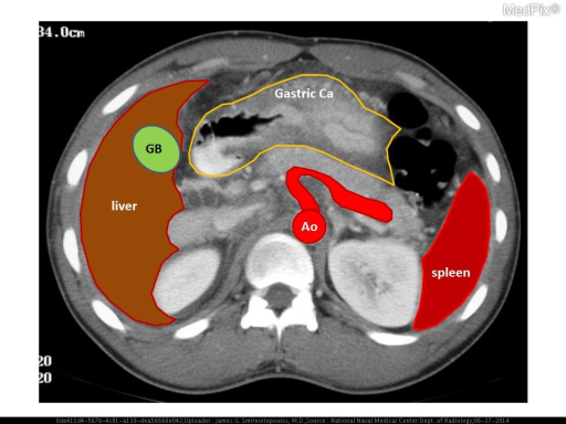 Contrast-enhanced axial CT image of the abdomen demonstrates concentric gastric wall thickening in the region of the gastric antrum.  This is proven gastric adenocarcinoma (linitis plastica pattern yellow outline).  Also labeled: Ao - aorta; GB - gallbladder; liver; spleen; and, splenic artery (curved red).