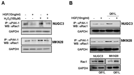 Effects of HGF and H2O2/LY 294002 on Rac-1 activation. Serum-starved cells was pretreated with or without H2O2 (100 μM) for 30 min and then treated with or without 10 ng/ml HGF (A). Rac-1 dominant positive cells (Q61L) were treated with or without HGF (B). After incubation for 15 min, the cells were collected, washed, and then sonicated. Cell lysates were immunoprecipitated with PAK-1 PBD and Rac-1 activation was measured by Western blotting with a Rac-1 antibody. Representative data from three independent experiments were shown.
