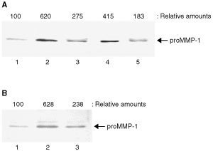 HT-1080 cell-derived VEGF stimulates HUVECs to produce proMMP-1. (A) Conditioned medium from HT-1080 cells and the culture medium supplemented with human recombinant VEGF165 (20 ng ml−1) were pretreated with or without an antibody against VEGF (50 μg ml−1) and then HUVECs were treated with these conditioned media for 24 h. The harvested culture medium was subjected to Western blot analysis for proMMP-1 as described in Materials and Methods. Lane 1, untreated HUVECs; lane 2, HUVECs treated with the HT-1080 cell-conditioned medium; lane 3, HUVECs treated with the HT-1080 cell-conditioned medium pretreated with VEGF antibody; lane 4, HUVECs treated with recombinant human VEGF165 and lane 5, HUVECs treated with recombinant human VEGF165 pretreated with VEGF antibody. (B) Confluent HUVECs were treated with or without conditioned medium from untreated or heat-shocked HT-1080 cells. Three independent experiments were reproducible and typical data were shown. Lane 1, untreated HUVECs; lane 2, HUVECs treated with the HT-1080 cell-conditioned medium and lane 3, HUVECs treated with the heat-shocked HT-1080 cell-conditioned medium. The relative amounts of proMMP-1 production were quantified by densitometric scanning and expressed taking the untreated HUVECs as 100.
