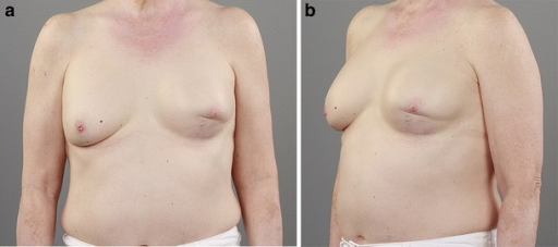 Appearance of left and right breast 9 months after placement of bilateral permanent implants