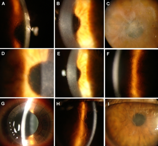 Photographs of the cornea from six individuals examined using slit lamp examination. Slit lamp photographs of patient V-19 of Family One at 27 years of age show opacities in the central stroma and linear forms in the left cornea (A and B; A: OD and B: OS). The image of case III-1 shows irregularity of the epithelial surface with subepithelial and anterior stromal scarring in the left eye (C). The image of case IV-10 revealed the presence of a network of linear opacities associated with polymorphic anterior stromal opacities in the right eye (D). The image of case IV-13 at 50 years of age shows opacities in the central stroma and linear forms in the left cornea (E). The image of case II-1 of Family Two at age 25 shows a network of linear opacities associated with other smaller opaque spots and refractile lattice lines in the left eye (F) and the right eye shows penetrating keratoplasty with characteristic mydriasis of Urrets-Zavalia syndrome (G). The photographs of case I-1 of Family Three at 52 years of age show thick lattice lines and yellowish discoloration in the anterior stroma, resulting in clouding of the central cornea (H and I).