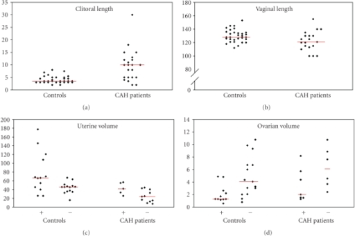 Gynecological outcomes in patients with congenital adrenal hyperplasia (CAH) and in controls: clitoral length (mm), vaginal length (mm), uterine volume (ml) separated by primipara/multipara (+) or ipara (–), and ovarian volume (ml) separated by current (+) or no (–) use of hormonal contraception. Lines indicate median values.