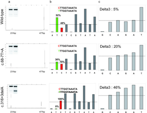 Analysis of delta3-transcript expression. a: Fragment analysis of Onestep RT-PCR products spanning exon 2 to 6. Semi-quantitative fragment analysis of Onestep RT-PCR products revealed the presence of the wild type transcripts at 477 bp and the delta3 alternative transcripts at 231 bp, as shown in the electrophoretograms of a control sample (wild type) and samples with the c.68-7T>A and c.316+3delA mutations. The percentages of delta3-transcript were, respectively: 6%, 22% and 61% for the sample illustrated. Left upper panels: agarose gel images of the same products after 33 cycles of PCR; the left wells contain the control, the right wells the samples with the respective mutation. b: Pyrosequencing histogram from the pyrogram for the c.-26A>G polymorphism with the primer set Ex1-2 F and Ex2-Ex3/4 R (only the full-length transcript). The sequence is C/T TTGGTAAATA. The proportion of C and T is directly computed by the pyrosequencing software. c: Pyrosequencing histogram from the pyrogram for the competitive QPCR using primer set exon 2/exon 3 and exon 2/exon 4 for the full-length transcript and delta3-transcripts, respectively. The sequence of the exon 2/3 transcript is CAGATTT and the sequence of the exon 2/4 transcript is CAGGAA. The proportion of GA (full-length transcript) and GGA (delta3-transcript) is directly computed on the pyrosequencing software.