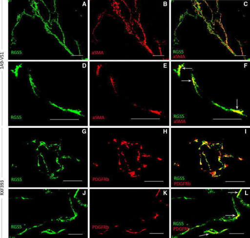 RGS5 protein is expressed by vascular mural cells. Representative images illustrating 1A9-VS1 and RXF393 tissue sections co-stained with RGS5 (green), and either αSMA or PDGFR-β (red). a–c and g–i Epifluorescence microscopy (scale bars 100 μm); the merge images show the overlap (yellow) of RGS5-αSMA (c) or RGS5-PDGFR-β (i). d–f and j–l Confocal microscopy (scale bars 10 μm) show colocalization of RGS5 (white arrows) with αSMA (f) or with PDGFR-β (l)