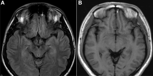 T1 images showed atrophic basal prefrontal (gyrus rectus) lesion of a 0.5 years ketamine addicts who took three drugs including ketamine (A). (B) Control with no retraction of gyrus rectus (arrow).